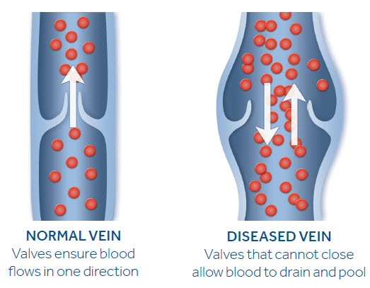 Normal veins ensure blood flows in one direction. Diseased veins that cannot close allow blood to drain and pool.